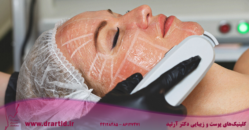 Can High Intensity Focused Ultrasound Treatment Replace Face Lifts  1200x628 facebook - جوانسازی هایفو