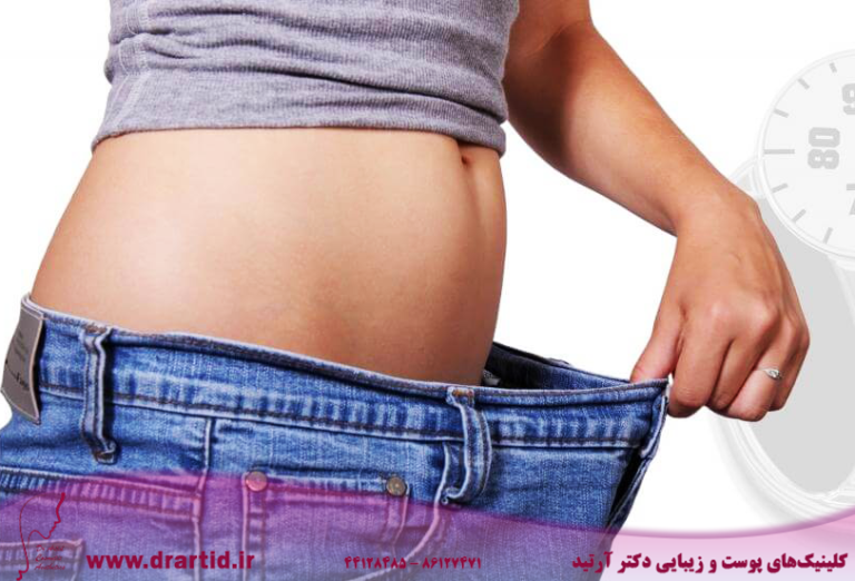 Losing weight before bariatric surgery reduces risk of death by 40 2 768x522 - لاغری