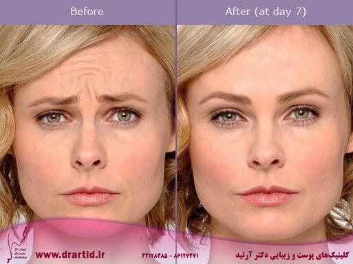 botox before after - تزریق - بوتاکس