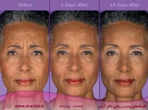 botox before and after 3 300x224 - تزریق - بوتاکس