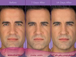 botox before and after 5 300x224 - تزریق - بوتاکس