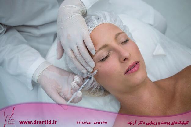female patient receiving botox injection face 107420 74105 - تزریق - بوتاکس