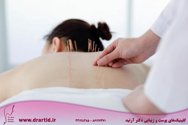 hand doctor performing acupuncture therapy asian female undergoing acupuncture treatment with line fine needles inserted into her body skin clinic hospital 1286 3578 - طب سوزنی