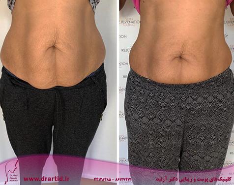 hifu bodylipolysis stomach area 1024x893 1 - جوانسازی هایفو