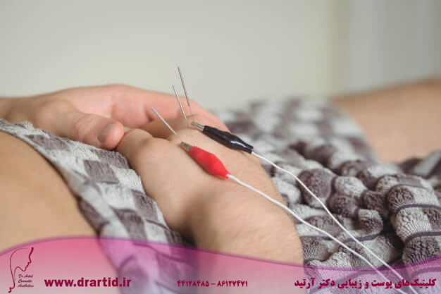 patient getting electro dry needling hand 107420 65803 - طب سوزنی