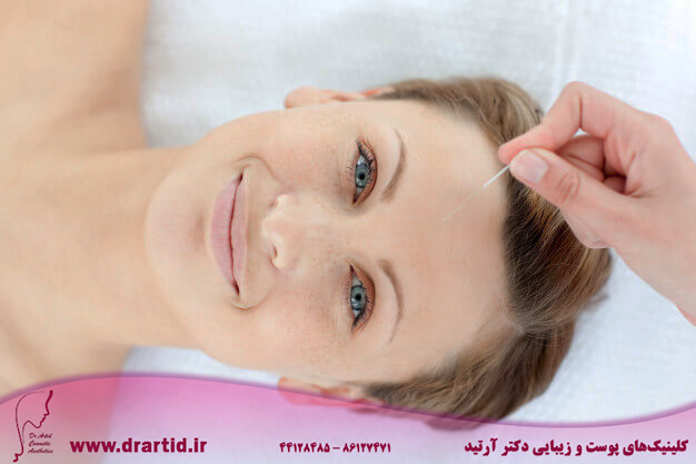 portrait cheerful woman acupuncture therapy 13339 152321 - طب سوزنی