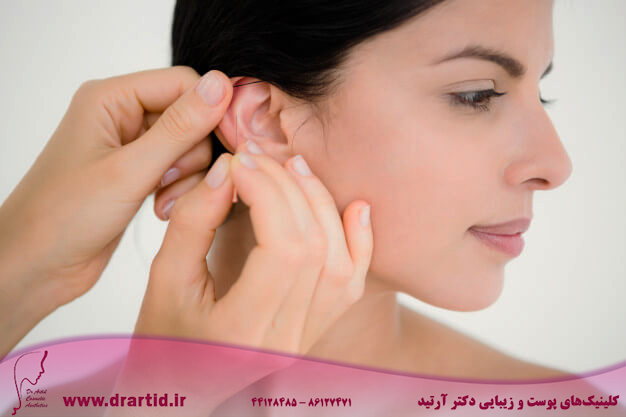 pretty woman acupuncture therapy 13339 146336 - طب سوزنی