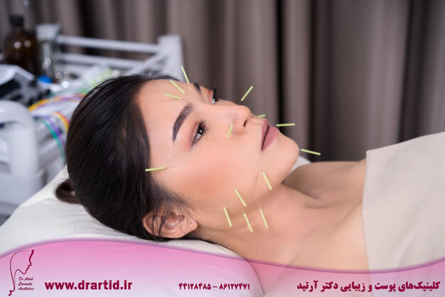 woman undergoing acupuncture treatment face 35076 3552 - طب سوزنی