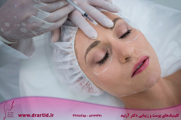 woman with marked face receiving botox injection 107420 74125 - تزریق - بوتاکس