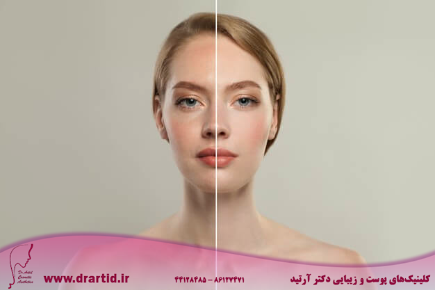 young model woman face with retouching without retouching 263368 47 - مراقبت پوستی