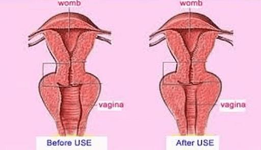 unnamed - دوره آموزشی کربوکسی تراپی زنان (واژینال)