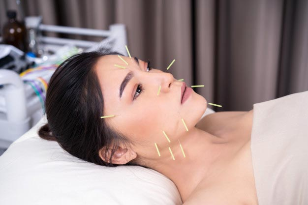 woman undergoing acupuncture treatment face 35076 3552 - دوره آموزشی طب سوزنی
