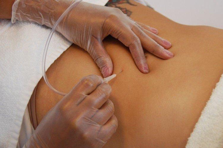 Carboxytherapy in Chicago - دوره آموزشی کربوکسی تراپی