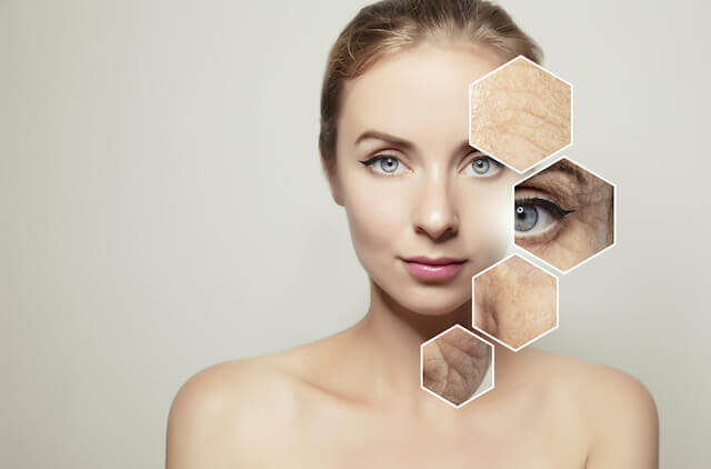 most common facial aging pattern is mixed - مقالات