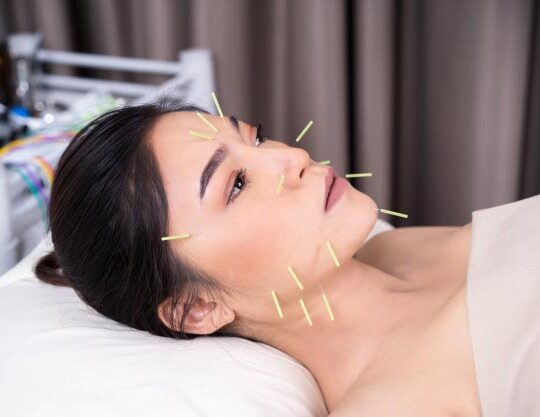 woman undergoing acupuncture treatment face 35076 3552 540x417 1 - خانه