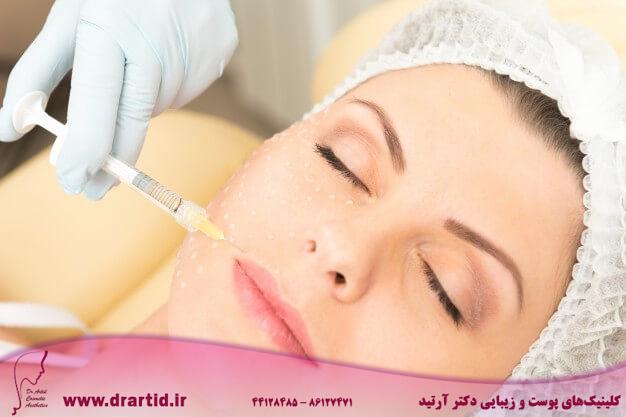 cosmetic injection closeup 1385 3120 - پروفایلو و مزایا و تاثیرات شگفت انگیز آن
