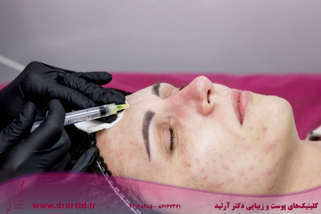 cosmetologist is making multiple injections biorevitalization with hyaluronic acid woman face 130265 9501 - پروفایلو و مزایا و تاثیرات شگفت انگیز آن