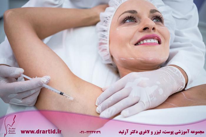 doctor injecting woman her arm pits - آموزش تزریق بوتاکس