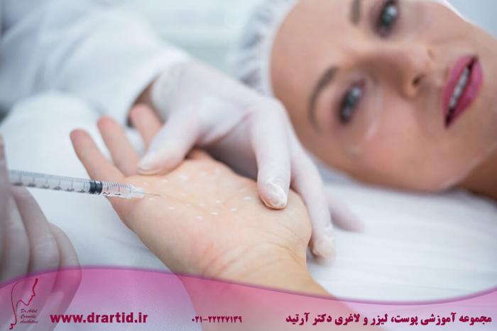doctor injecting woman her palm - آموزش تزریق بوتاکس