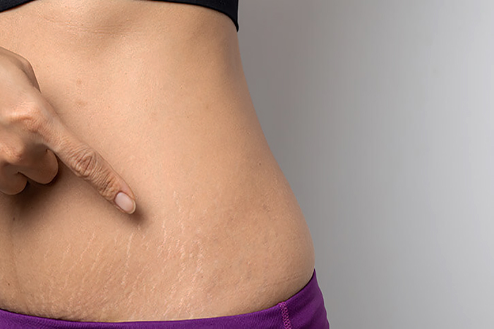 why some people get stretch marks and others dont - مقالات